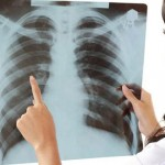 Tuberkuloza---pluca