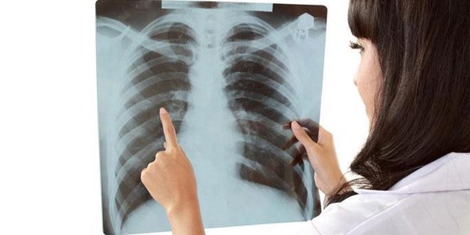 I u Zaječaru se obeležava Svetski dan borbe protiv tuberkuloze